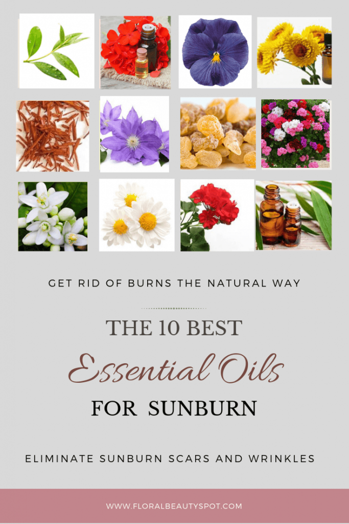 sunburn essential oils